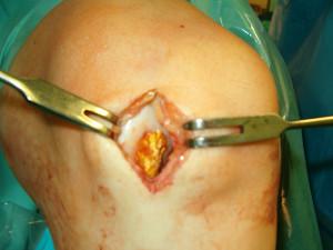Przeszczep komórek macierzystych
